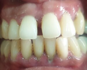 Gum/Periodontal disease
