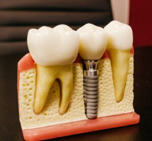 Rich results in google SERP while searching Dental Implants in Mysore